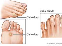 callos duros en la diabetes de eliminación de pies