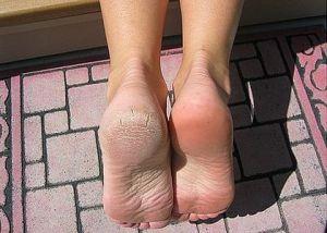 pies callosos