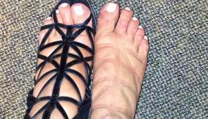 zapatos inadecuados